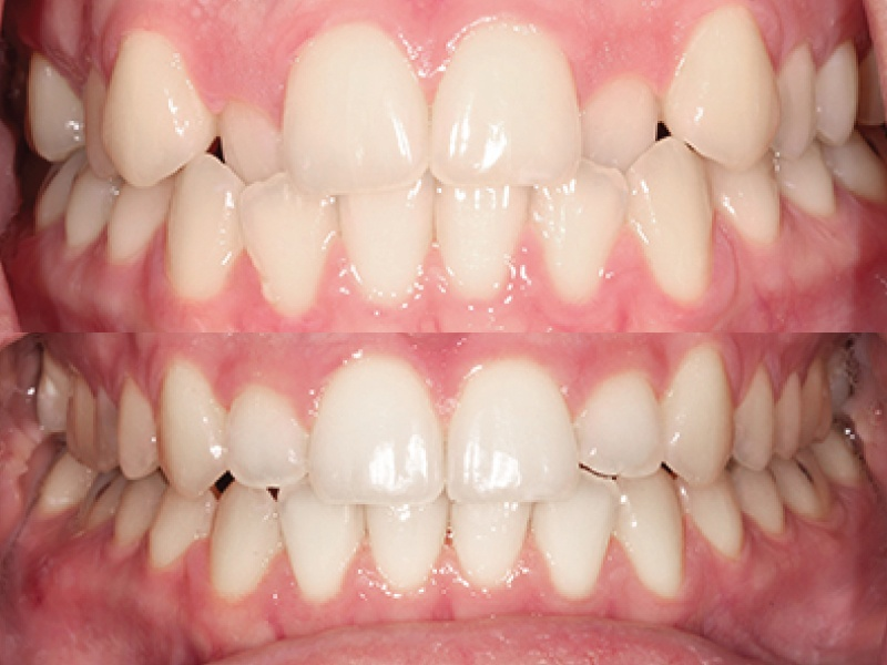 Anterior Cross Bite - Six Month Smiles
