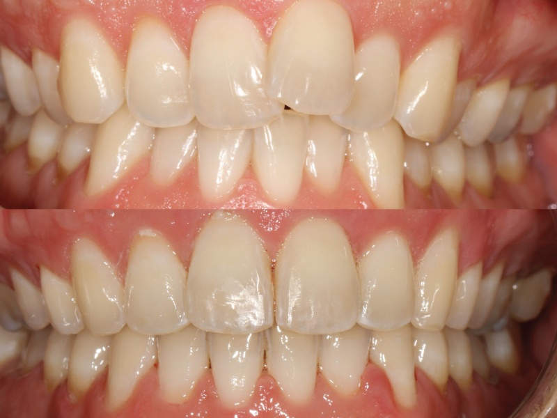 Overlap and Upper Crowding - Six Month Smiles