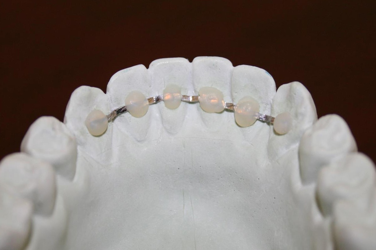 Orthodontic Retention - Lingual Bonded Retainer